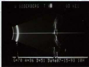 o.d. ultrasound